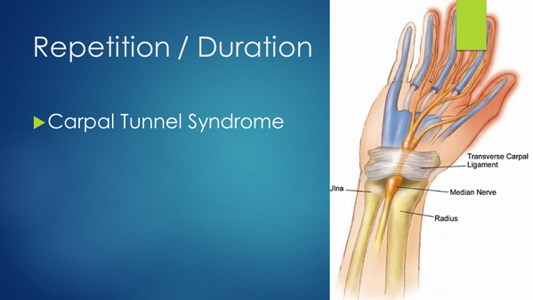 Repetition - Carpal Tunnel