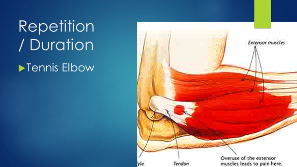 Repetition - Tennis Elbow